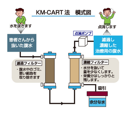 CART療法(Cell-free and Concentrated Ascites Reinfusion Therapy)とは?