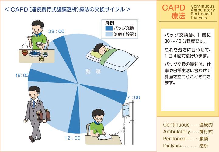 CAPD(連続携行式腹膜透析)療法の交換サイクル