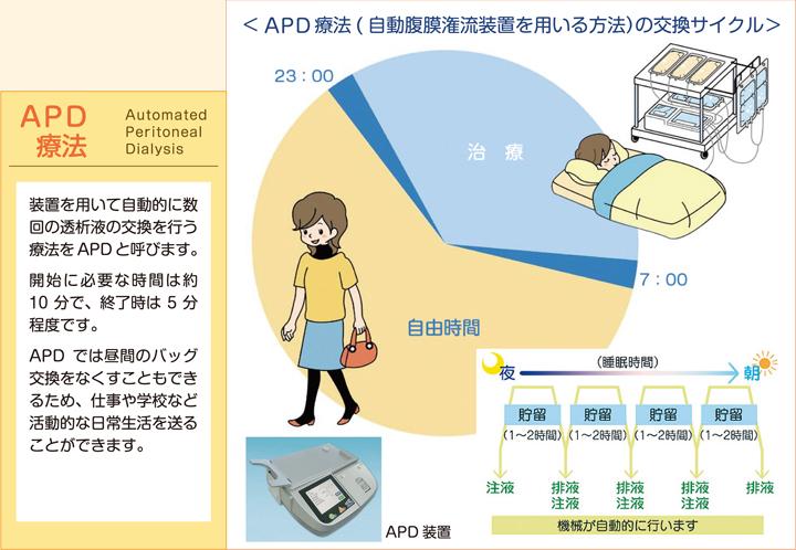 APD療法(自動腹膜潅流装置を用いる方法)の交換サイクル